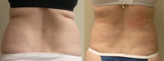 boczki Lipoliza laserowa – alternatywa dla liposukcji?