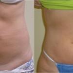 brzuch 150x150 Lipoliza laserowa – alternatywa dla liposukcji?