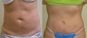 brzuch 300x132 Lipoliza laserowa – alternatywa dla liposukcji?