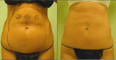 brzuch2 Lipoliza laserowa – alternatywa dla liposukcji?