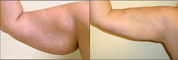 lipoliza laserowa slimlipo ramie Lipoliza laserowa – alternatywa dla liposukcji?