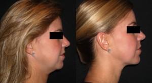 policzki po lipolizie laserowej 300x164 Lipoliza laserowa – alternatywa dla liposukcji?